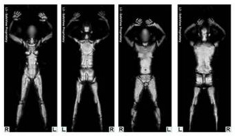 Sen. Schumer Proposes Law Against Saving Full-Body Scans