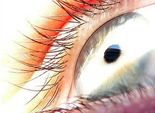 Botched LASIK Eye Surgery Leads To Corneal Transplant