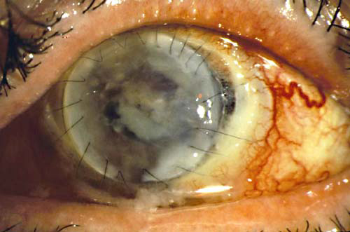 Pictures of Eyeball Fungus