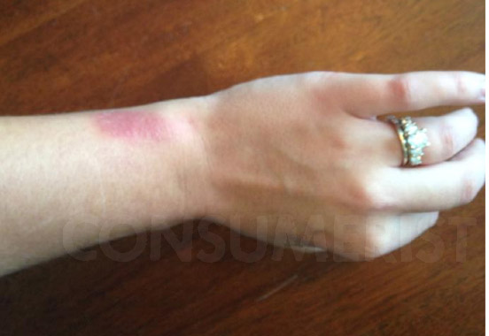 "Fitbit Apologizes To ""Very Limited Number Of"" Force Owners With Skin Irritation"