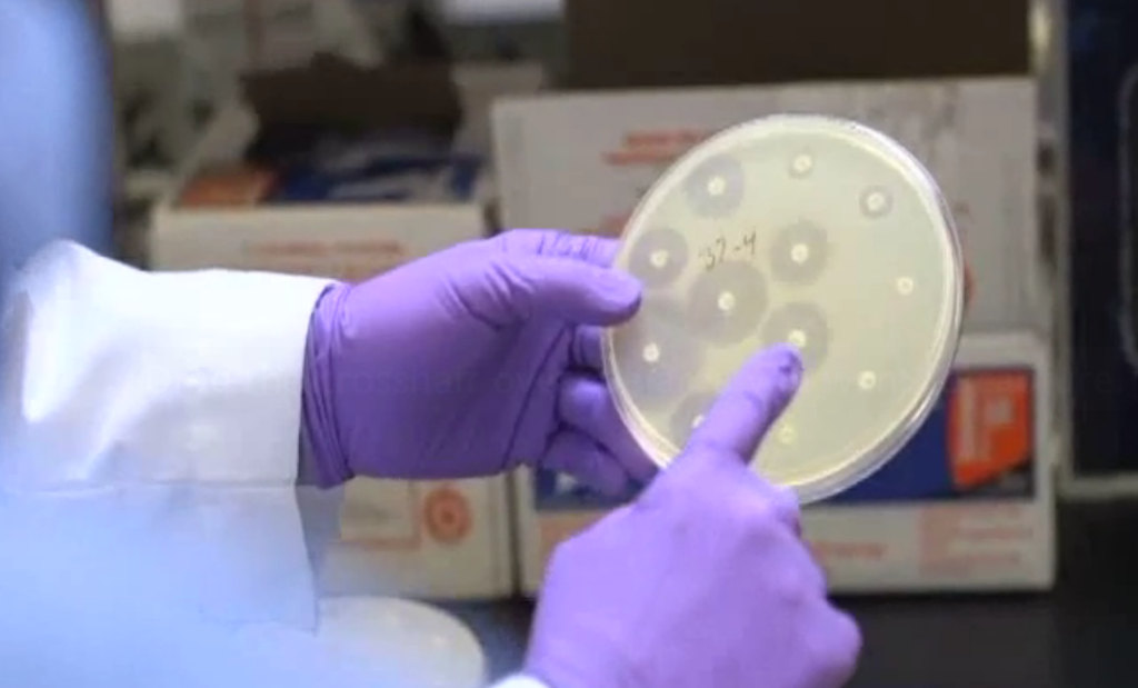 You can see by the small or nonexistent reactions around the dots on the right that the e. coli in this petri dish is resistant to those  particular antibiotics.