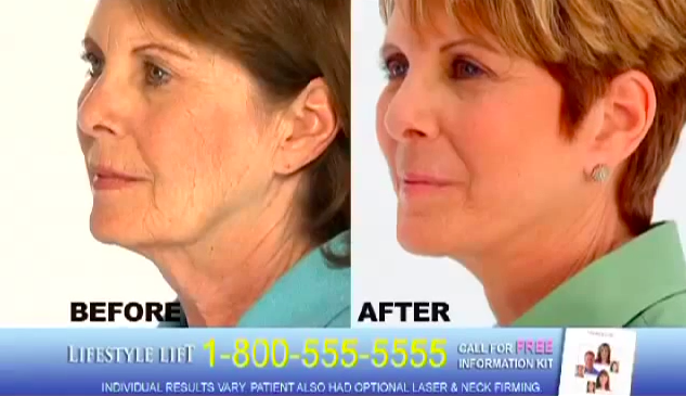 Here a Lifestyle Lift commercial claims to provide facelifts in just an hour.