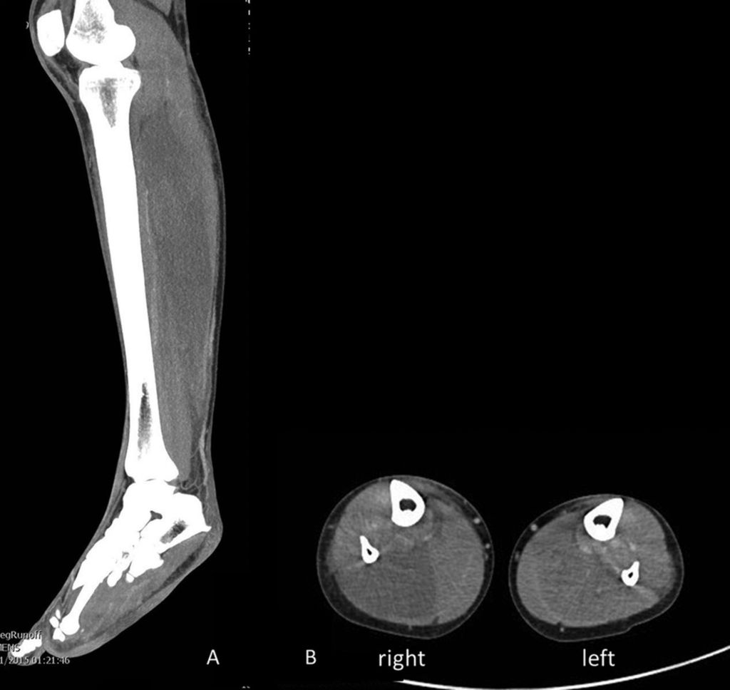 "A CT scan of the right leg and scans of both lower legs showing ""hypoattenuation and oedema of muscles of the posterior compartment of the calves, consistent with myonecrosis."""