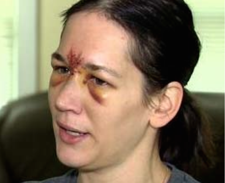 In July, this Connecticut woman was hospitalized and received 30 stitches after being hit in the forehead by a foul ball at Boston's Fenway Park.