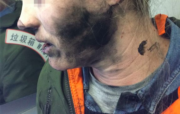 Passenger's Headphones Explode During Flight